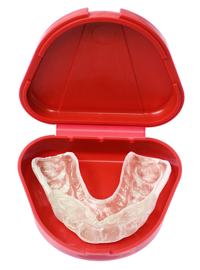 Mouthguards by Kincumber Dentures